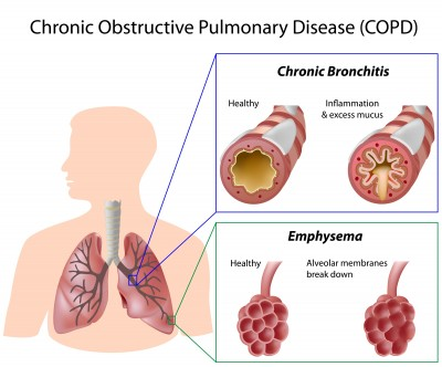 COPD071311387383_s